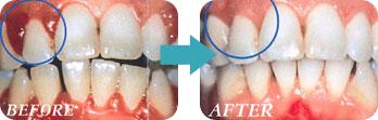 歯肉炎・歯周病の予防