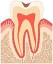 歯の一番外側のエナメル質が侵された状態。