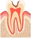 虫歯が象牙質まで達し、穴があいている状態。
