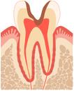 歯髄まで侵され、大きな穴があいた状態。