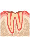 歯肉から上の部分(歯冠)はほとんどなくなり、根(歯根)だけが残された状態。