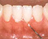 これを歯垢と言います。