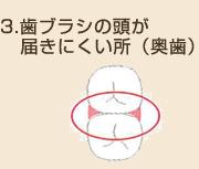 歯ブラシの頭が届きにくい所(奥歯)