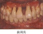 歯周炎 骨や歯と骨が接合している繊維(歯根膜)まで炎症が進んだ場合。