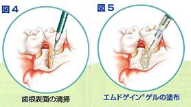 歯根表面の清掃を行い、エムドゲイン®ゲルを塗布します。